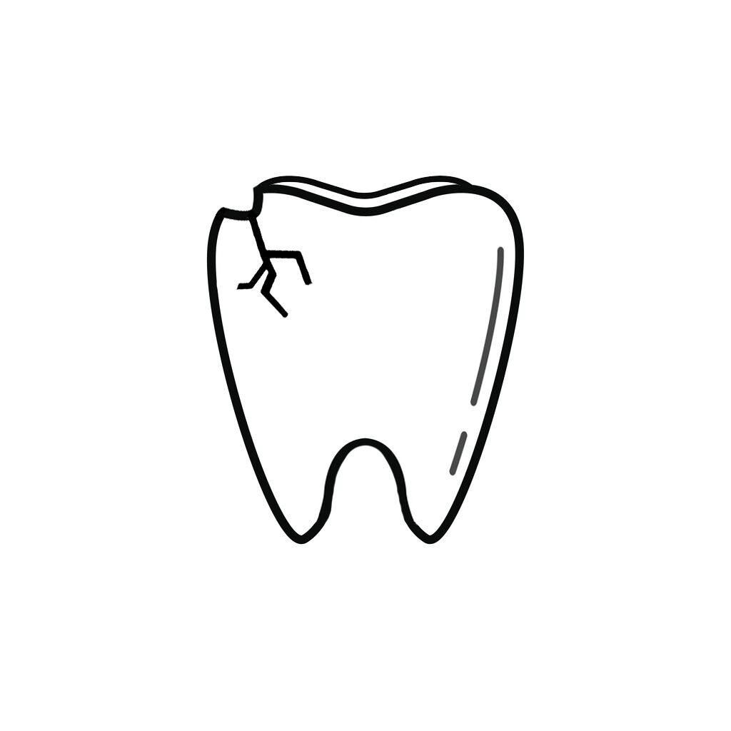 Portland OR Dentist | I Chipped a Tooth! What Can I Do?